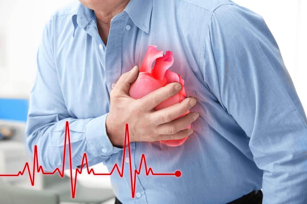 Comment reconnaître une crise cardiaque (infarctus)